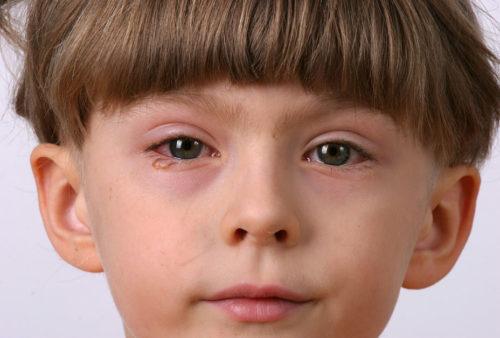 äußerliche anzeichen hepatittis