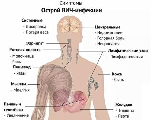 wirtszelle von hiv