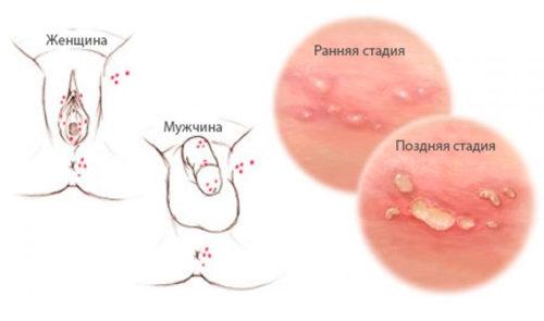 Anzeichen herpes genitalis Herpes Genitalis
