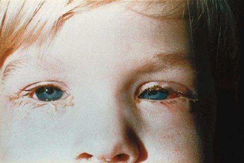 bindehautentzündung kinder therapie
